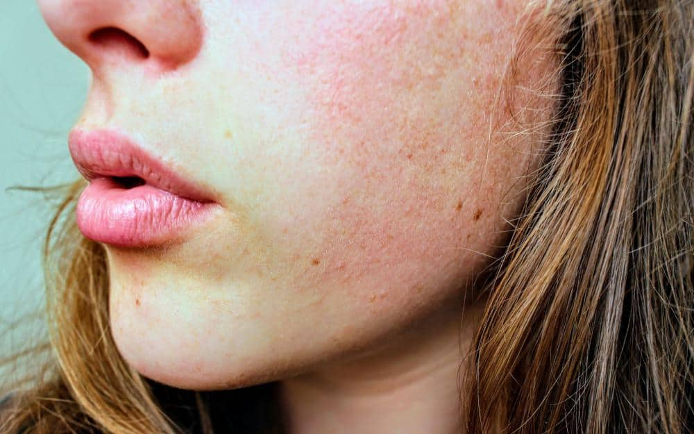 Banish Brown and Red Spots With Cutting-Edge Radio-frequency Treatment